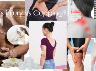 Cupping-Sports injuries and more!